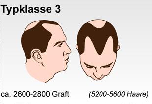 Haartransplantation Schweiz Typenklasse
