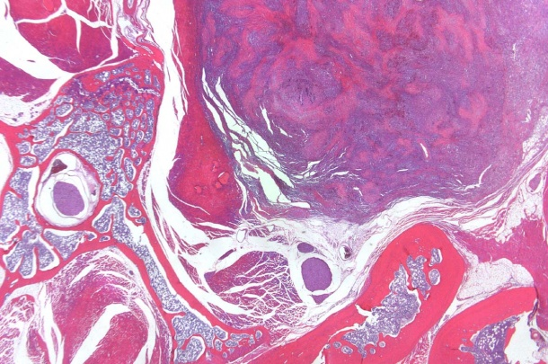 Bone, Vertebral Column, Hemangiosarcoma, x1.25