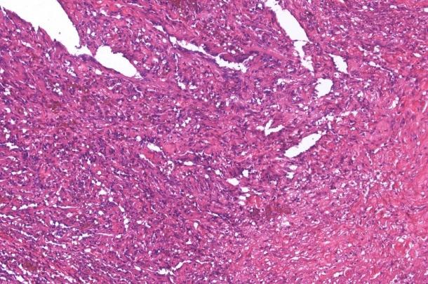 Bone, Vertebral Column, Hemangiosarcoma, x20