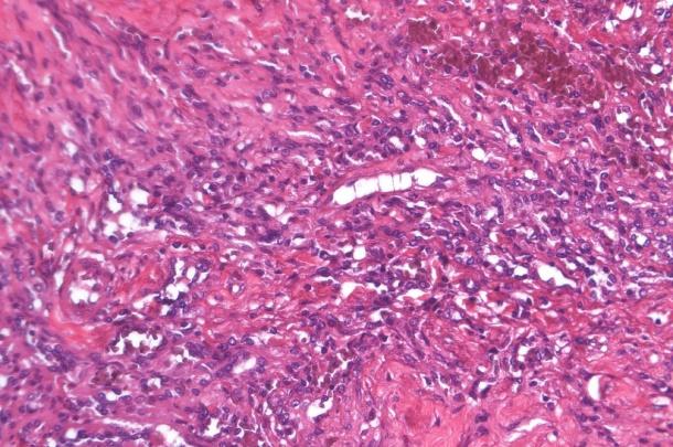 Bone, Vertebral Column, Hemangiosarcoma, x40 A