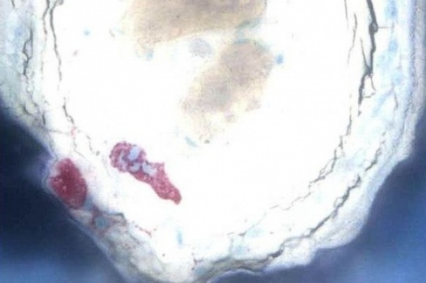 Example: Grinded, polished and stained non-decalcified bone with special stain for osteoclasts, Trap Stain