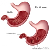 PepticUlcer